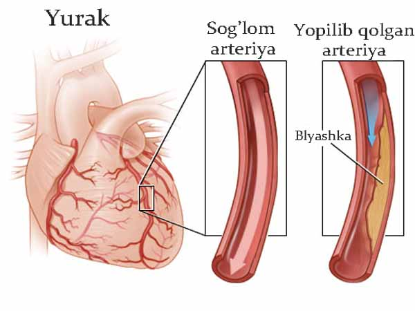 Yurak toj arteriyalari aterosklerozi