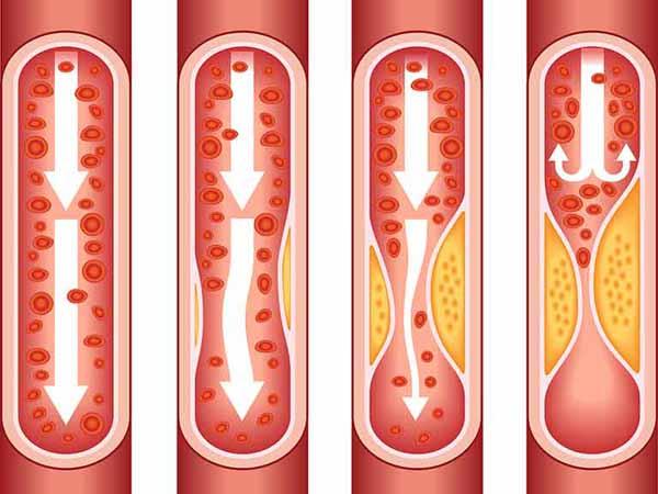 Ateroskleroz darajalari