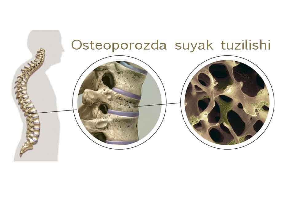 Normal va osteoporoz suyaklar