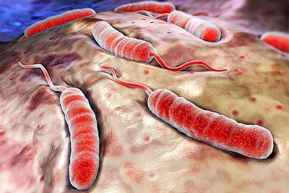 Vabo vibrioni bakteriyasi