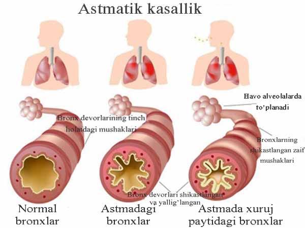 Astmatik kasallik