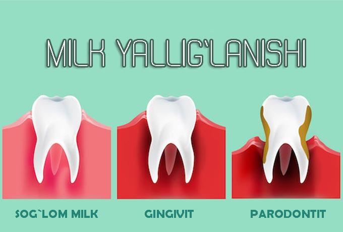 Gingivit - milk yallig'lanishi