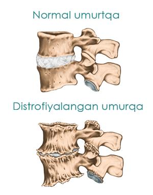 Osteoxondrozda normal va distrofiyalangan umurtqa