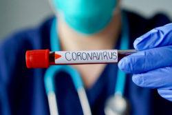 Koronavirus kasalligi haqida