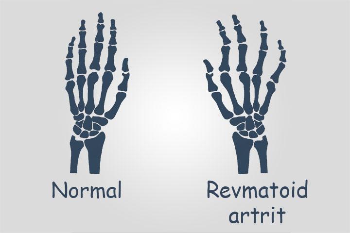 Revmatoid artrit kasalligi haqida