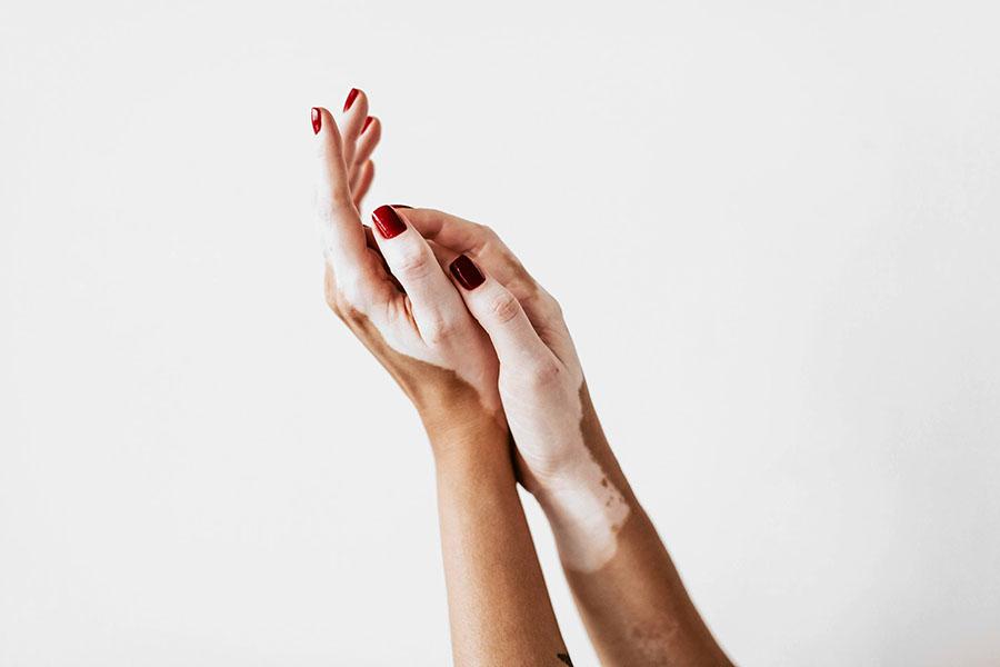 Vitiligo yoxud pes kasalligi: qo'llarda oq dog'lar